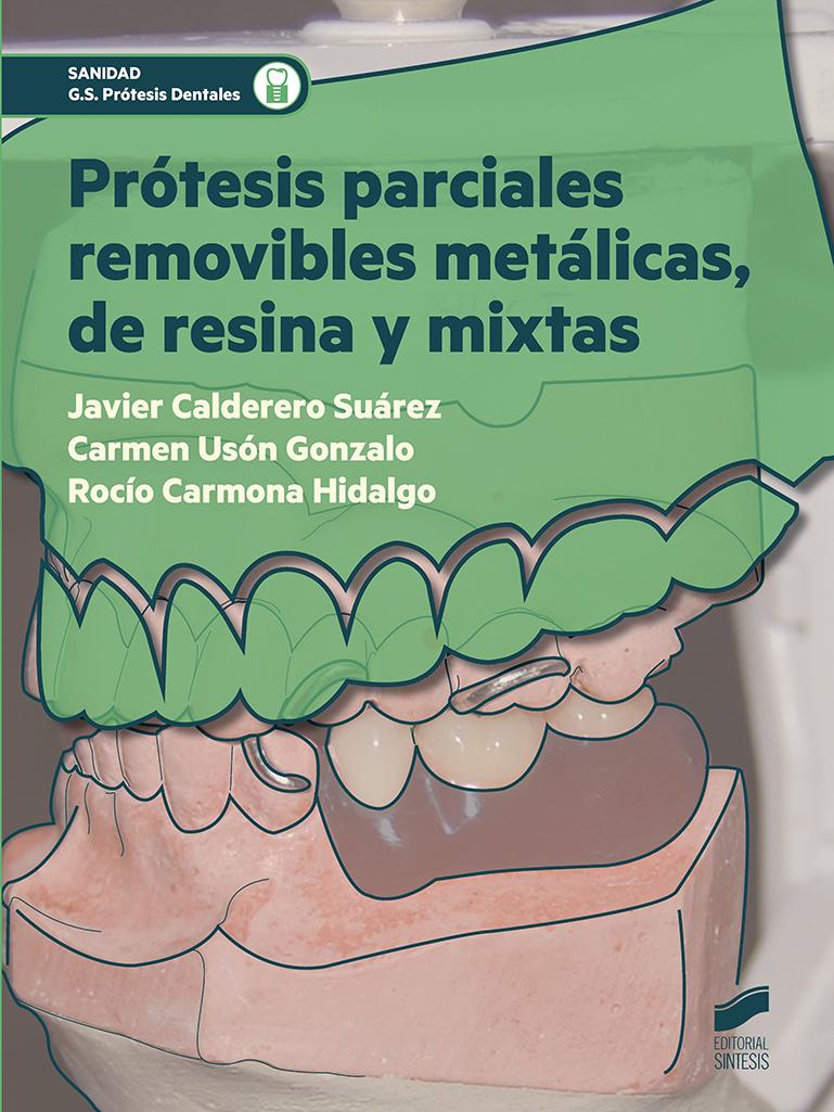 Prótesis parciales removibles metálicas, de resina y mixtas